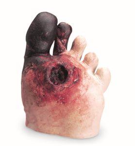 pie-simulado patología-nutricion