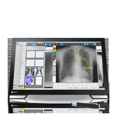 Monitor grado médico touch EIZO MS236wt