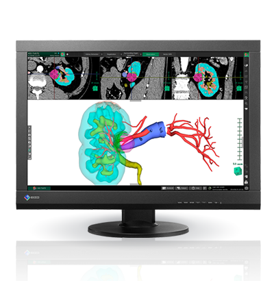 Monitor grado médico EIZO a color mx242W