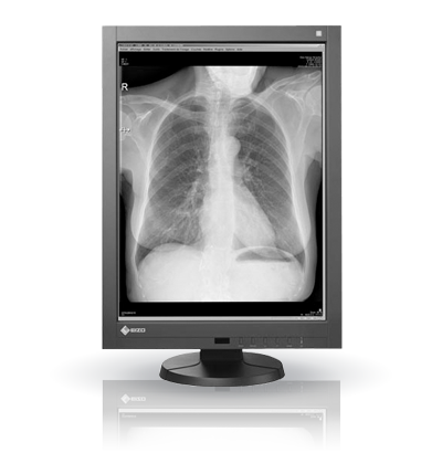 Monitor EIZO GX340 grado médico blanco y negro