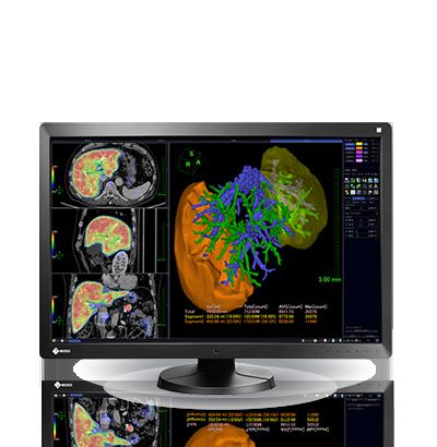 Monitor grado médico EIZO a color rx650