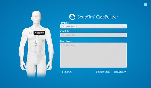 Sonosim creador de casos para enseñanza de ultrasonido