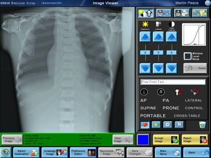 Carestream Software DIRECTVIEW DR y CR